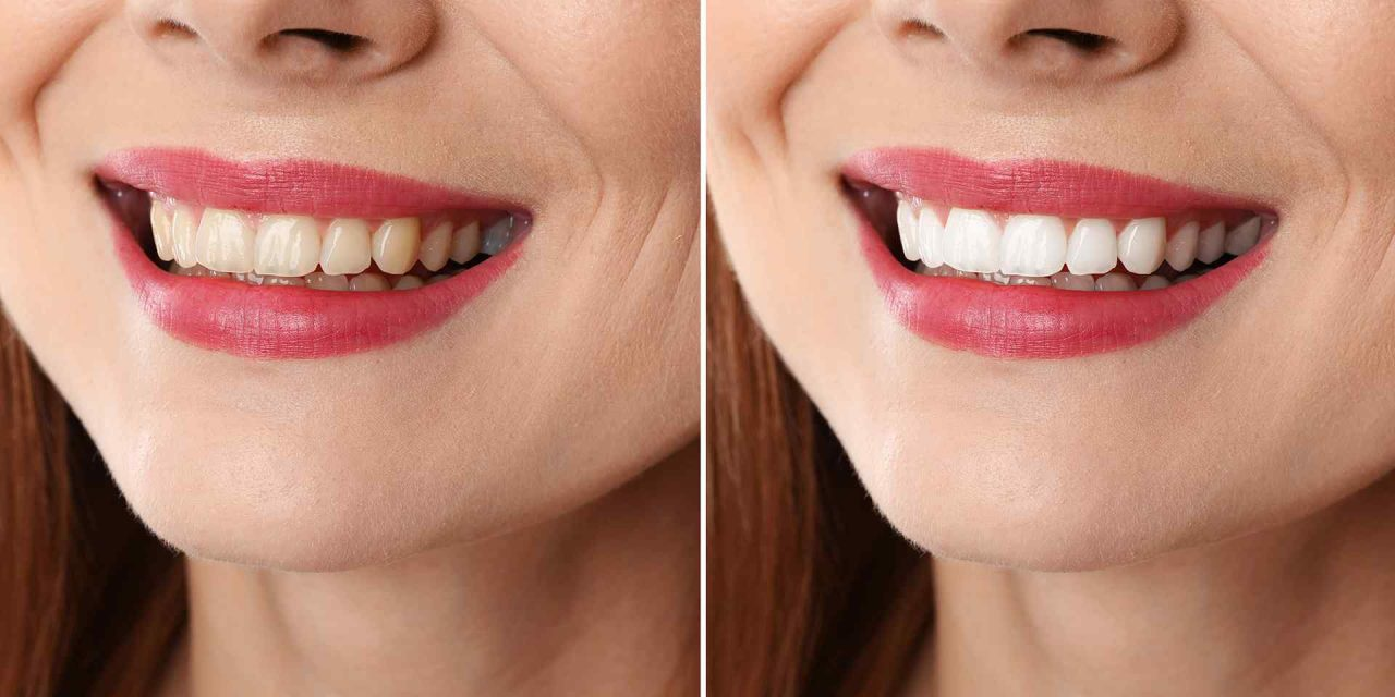 Eleven tips to treat white spots on teeth
